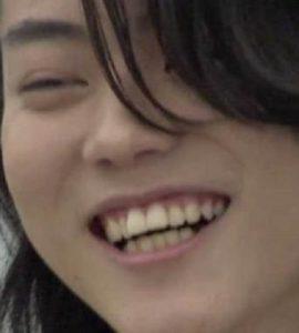菅田将揮ビフォー