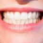 歯並びが悪すぎて醜いので死にたいくらい悩んだ時もありました。